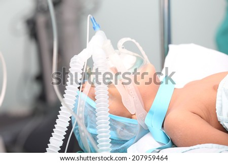 Unidentified boy with oxygen mask in the surgery. Focus in the mask tubes. - stock photo