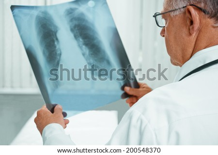 Unrecognizable older man doctor is analyzing x-ray image of lungs in a clinic - stock photo