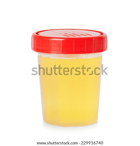 Urine sample in container isolated on white background. - stock photo