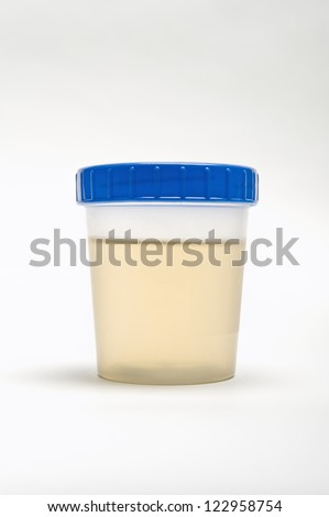 Urine sample in plastic container isolated over white background - stock photo