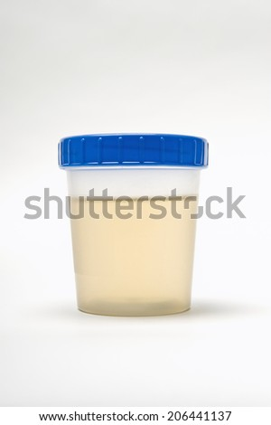 Urine sample in plastic container isolated over white background