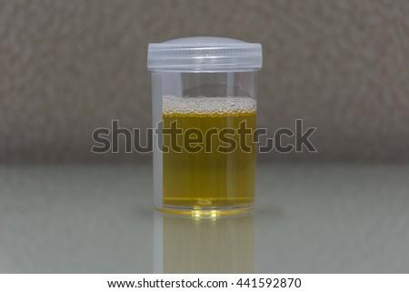 Urine sample testing in plastic bottle for examination in laboratory hospital - stock photo