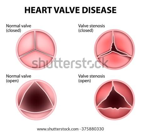 Valvular heart disease stock illustration 375880330 shutterstock valvular heart disease ccuart Choice Image