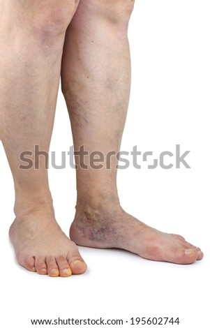 Varicose vein. Isolated on white background