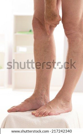 Varicose veins closeup, foot on modular bath step - stock photo