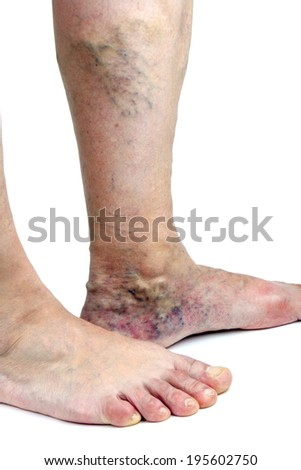 Varicose veins. Isolated on white background - stock photo