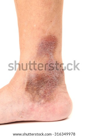 Varicose veins. Isolated on white background