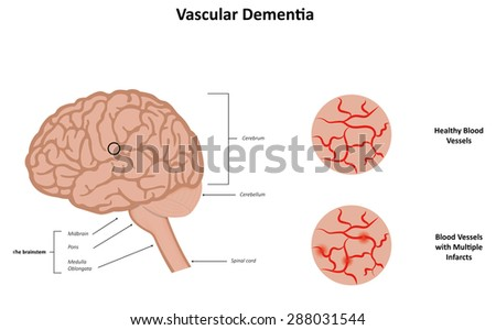 Vascular dementia: what is it, and what causes it?