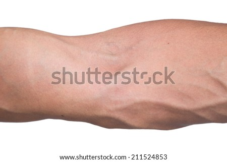 Vein in the arm
