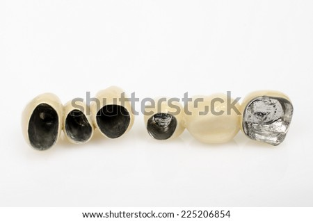 view inside, ceramic bridges with non-precious metal - stock photo