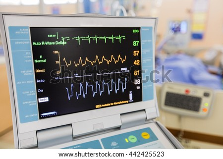 how to read hospital vital signs monitor
