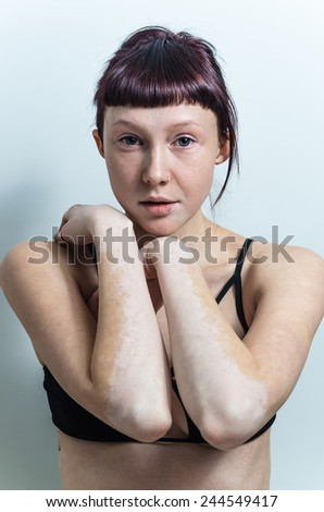 vitiligo affected skin beautiful female