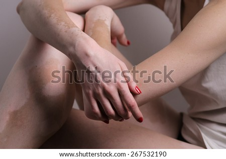 vitiligo affected young woman red nails indoor