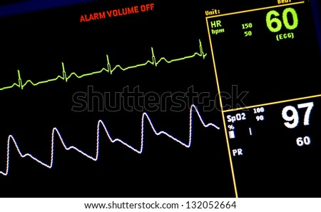 waveforms - stock photo
