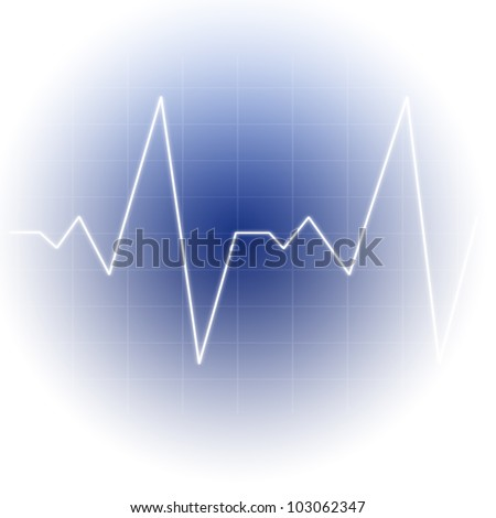 White line forming sine wave against a white background