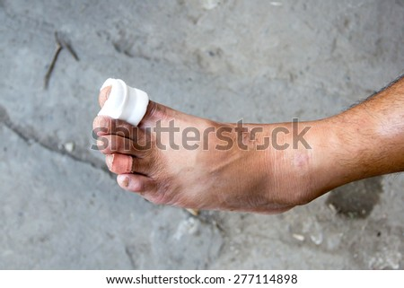 White medicine bandage on injury foot - stock photo