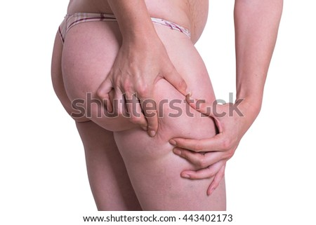 woman cellulite fat of the leg isolated on white background . with clipping path included