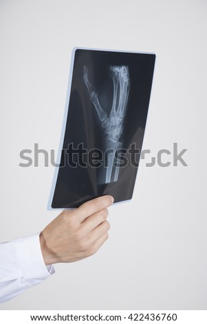 woman doctor hand with white gown and stethoscope with black radiography of hand skeleton isolated over white background