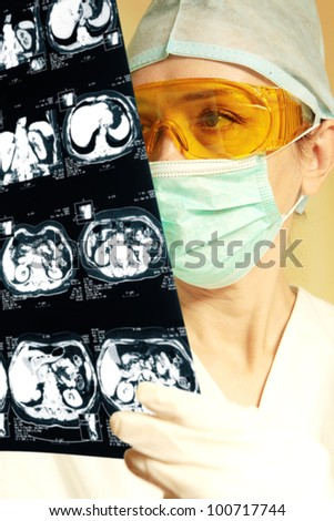 Woman doctor holding an x-ray in the hospital - stock photo