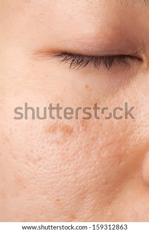 Woman face with scar and skin problems