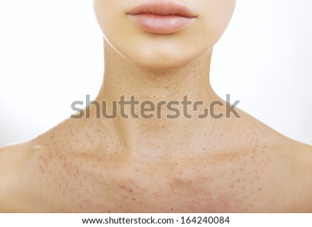 woman getting an injection, Young woman in a cosmetic clinic. Beauty treatment - real papules after hyaluronic injection  - stock photo