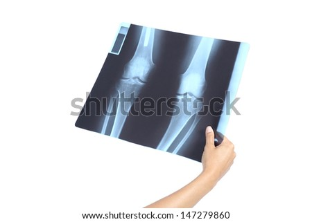 Woman hand holding a knees radiography isolated on a white background         - stock photo