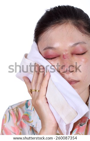 Woman holds an ice pack after nose job plastic surgery - stock photo