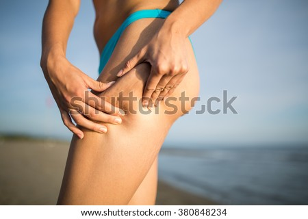 Woman is testing the skin for stretch marks and cellulite on the beach.Woman holding/showing cellulite area.Self consciousness,self confidence and body insecurity.Summer beach body.Cellulite removal - stock photo