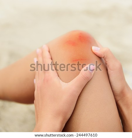 Woman nursing an injured bruised grazed knee with surface petechia on the skin and tissue discoloration in her hands in a healthcare and medical concept, close up of the joint and hands - stock photo
