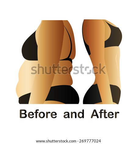 Woman's body before and after fitness,yoga. Cellulite versus smooth skin. Cellulite, Fat on belly.  - stock photo