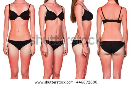 Woman's body with sunburn