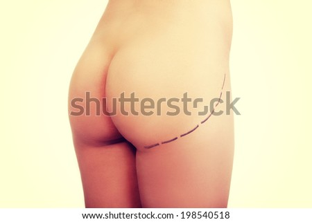 Woman's buttock prepared to plastic surgery. - stock photo