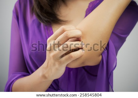Woman scratching her arm - stock photo