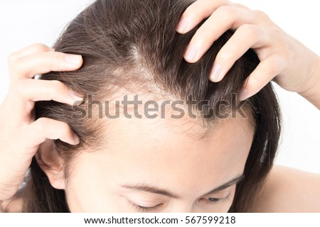 hair loss shampoo Pembroke Pines