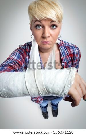Woman showing her broken arm - stock photo