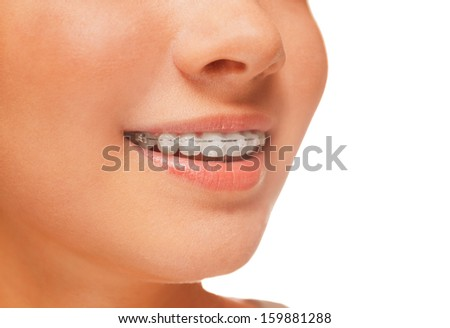 Woman smile: teeth with braces, dental care concept, side view - stock photo