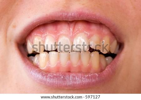 woman teeth - stock photo