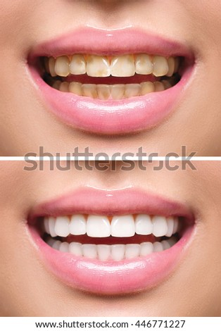 Woman Teeth Before and After Whitening. Happy smiling woman. Dental health Concept. Oral Care