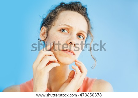 woman unhappy with her skin