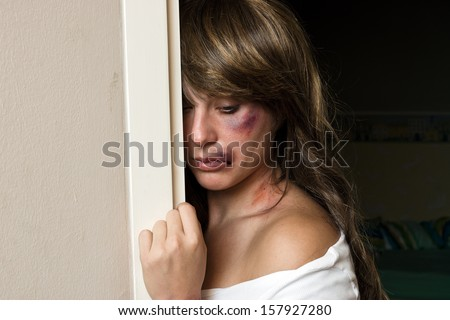 woman with bruises victim of domestic violence or accident hiding behind wall - stock photo