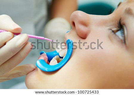 woman with open mouth during dental procedure of teeth protective lacquer covering