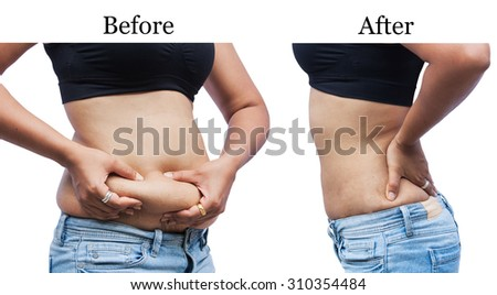 women body fat belly between before and after weight loss - stock photo