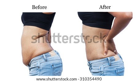 stomach fat after weight loss