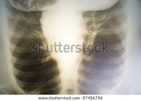 Women's chest x-ray recording of the 80 retro flinging outdated technology - stock photo