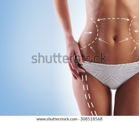Women slim body in swimwear having arrows along her stomach and legs. Fat lose, liposuction and cellulite removal concept. - stock photo