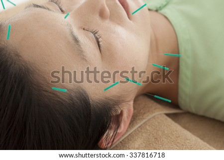 Women who get acupuncture to rejuvenated - stock photo