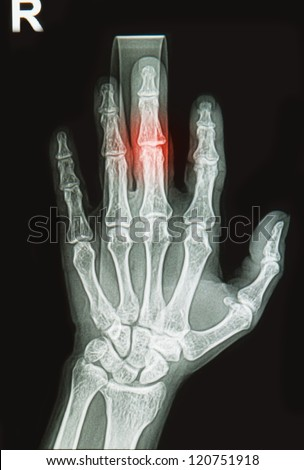 hand x-rays image show fracture bone on finger splint - stock photoBroken Index Finger Cast