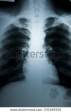 X-Ray body scan - stock photo
