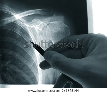 X-ray close up of shoulder and doctor's hand pointing - stock photo