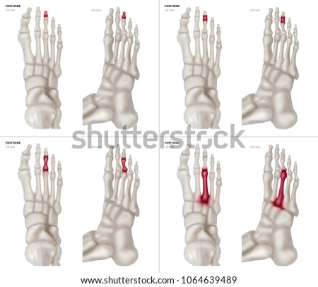 Xray Collection Middle Toe Foot Bone Stock Photo (Edit Now ...